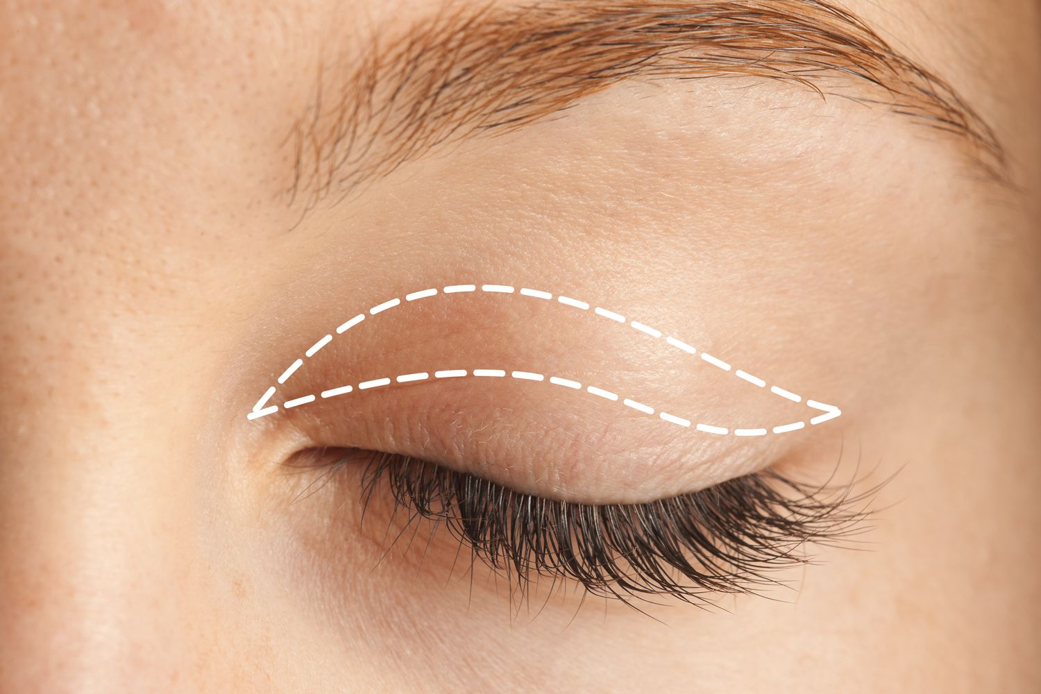 Eye-surgery-for-lifting
