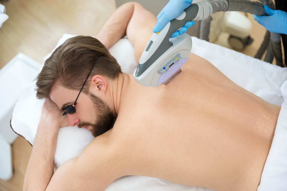 Laser-hair-removal-services-men